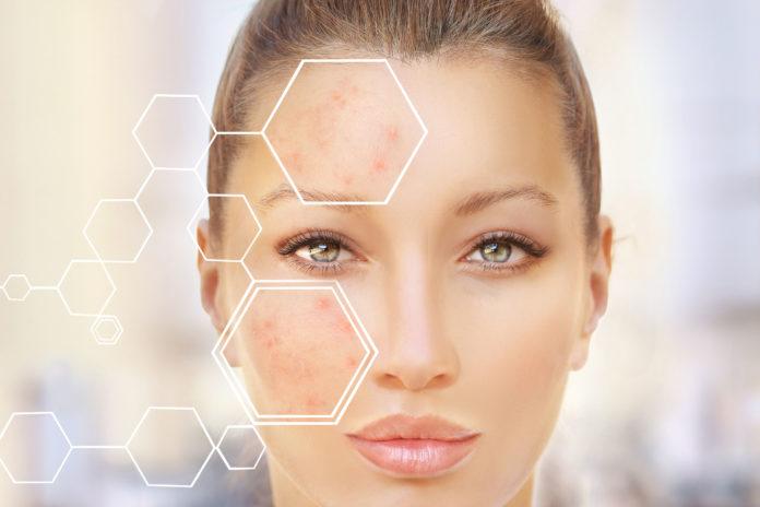 Pigmentflecken im Gesicht: Woher sie kommen und was dagegen hilft