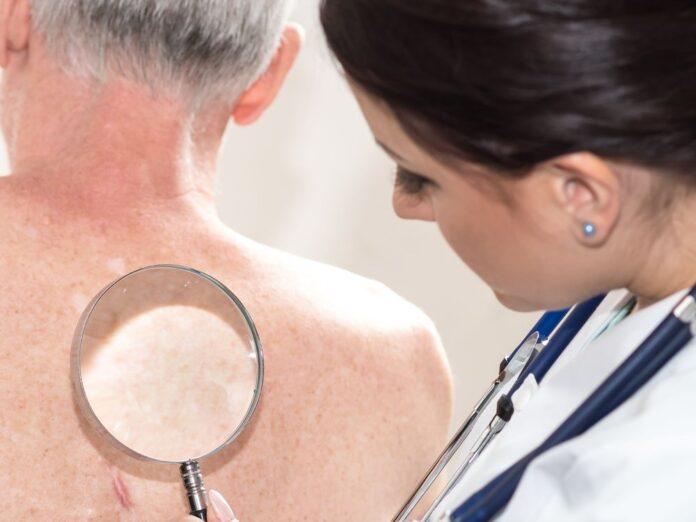 Bei Verdacht auf Gürtelrose sollte man schnellstmöglich einen Arzt aufsuchen.