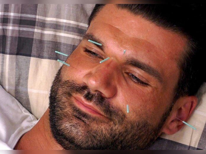 Mike ausnahmsweise entspannt bei Michelles Akupunktur.
